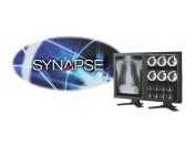 PACS-система SYNAPSE